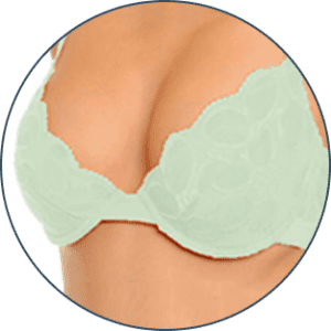 Breast Before & After Photos