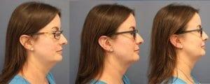 shani kybellla two treatments