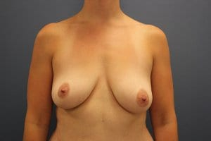 breast-augmentation-surgery-patient1-before-photo