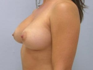After-Photo-Breast-Augmentation-Surgery-Patient2-image2