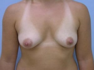 Before-Photo-Breast-Augmenation-Surgery-Patient2-image1