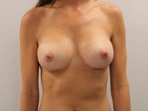 Breast-Enlargement-Patient-3-After-view1