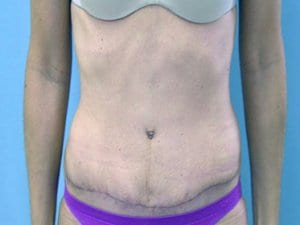 Tummy-Tuck-After-Photo-view1-Patient3