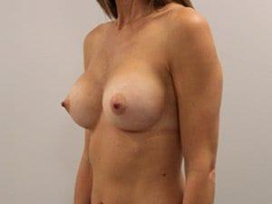 Breast-Enlargement-Patient-3-After-view2