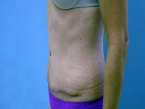 Tummy-Tuck-After-Photo-view2-Patient3