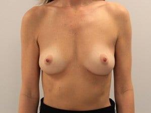 Breast-Enlargement-Patient-3-Before-view1