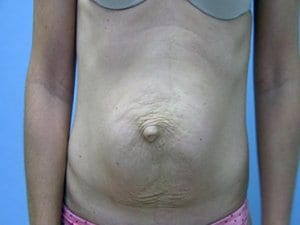 Tummy-Tuck-Before-Photo-view1-Patient3