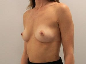Breast-Enlargement-Patient-3-Before-view2