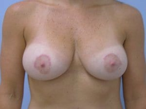 Breast-Enlargement-Patient-5-After-view1