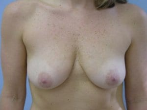 Breast-Enlargement-Patient-5-Before-view1