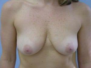 Breast-Enlargement-Patient-5-Before-view1