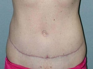 Patient6-Abdominoplasty-After-photo