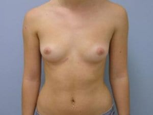 Breast-Augmentation-Surgery-Before-Photo-Patient6-view1
