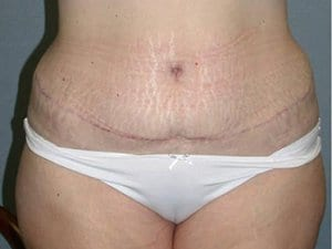 Tummy-Tuck-After-Image-Patient7