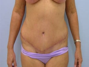 Tummy-Tuck-After-Photo-Patient8