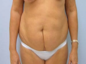 Tummy-Tuck-Before-Photo-Patient8