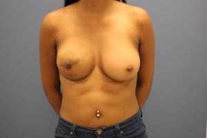 after-breast-reconstruction-patient6-view2