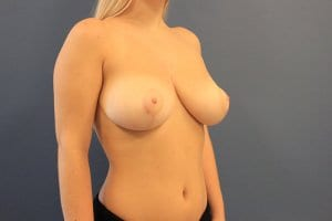 after-photo-breast-reduction-patient10-view2