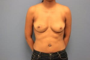before-breast-reconstruction-patient6-view2
