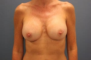 breast-augmentation-patient2-after-image