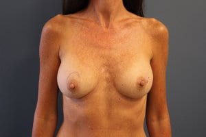breast-augmentation-patient2-before-image