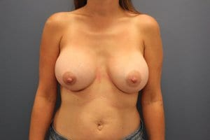 breast-augmentation-surgery-after-patient9