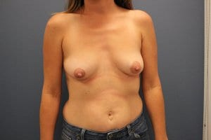 breast-augmentation-surgery-before-patient9