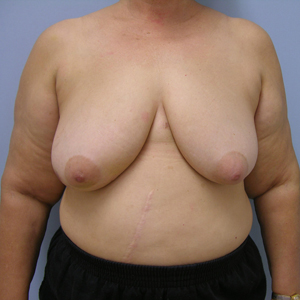 breast-cancer-reconstruction-before-photo-patient2