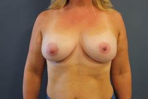 breast-enlargement-patient4-after-view1