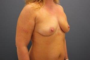breast-enlargement-patient4-before-view1