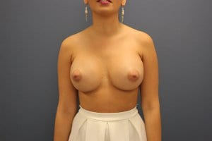 breast-enlargement-procedure-after-patient10