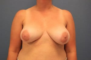 breast-implant-removal-patient1-before
