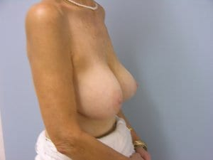 breast-implant-removal-patient2-before-view2