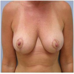 breast-lift-after-photo-patient8