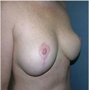 breast-lift-patient5-photo-after