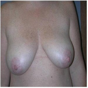 breast-lift-patient5-photo-before