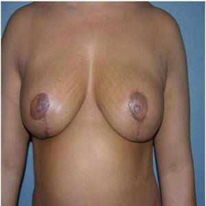 breast-lift-patient6-after