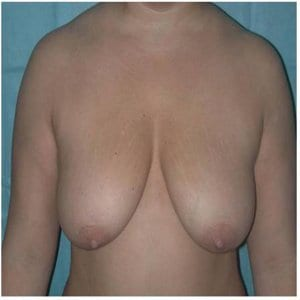breast-lift-patient6-before