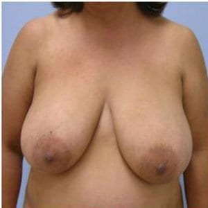 breast-lift-photo-before-patient1