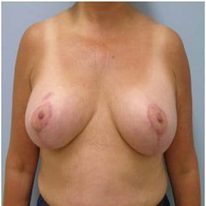 breast-lift-surgery-after-image-patient2