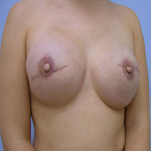 breast-reconstruction-after-image-patient3
