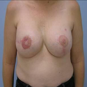 breast-reconstruction-surgery-after-patient1