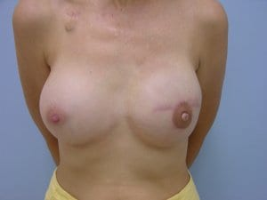 breast-reconstruction-surgery-after-photo-patient5