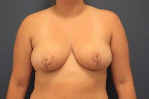 breast-reduction-image-patient7-after-view1