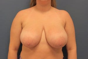 breast-reduction-image-patient7-before-view1