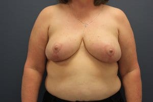 breast-reduction-patient1-after-view1