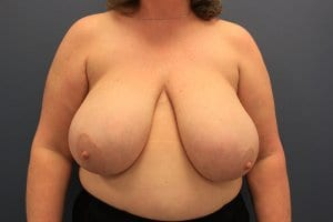 breast-reduction-patient1-before-view1