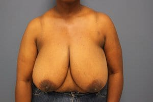 breast-reduction-patient2-before-view1