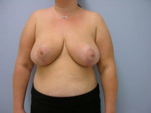 breast-reduction-patient3-after-image2
