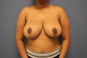 breast-reduction-patient4-after-image